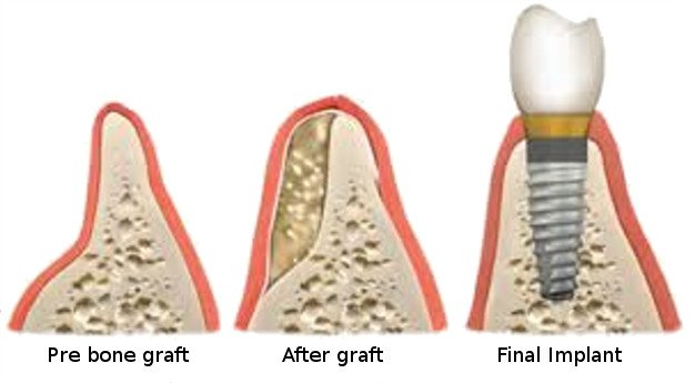 Bone Grafting 1
